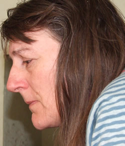a picture of Linda very ill