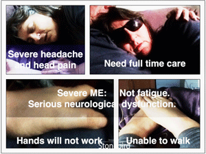 Severe ME is about Needing Care, Hands unable to work, feet unable to work, severe headache and headpain
